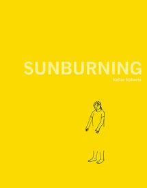 Medium sunburning 560